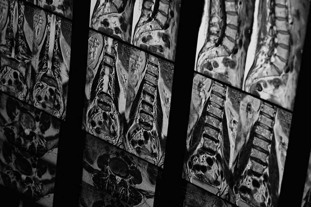 Open MRI เป็นเครื่อง MRI ที่มีลักษณะช่องตรวจเป็นเเบบเปิด