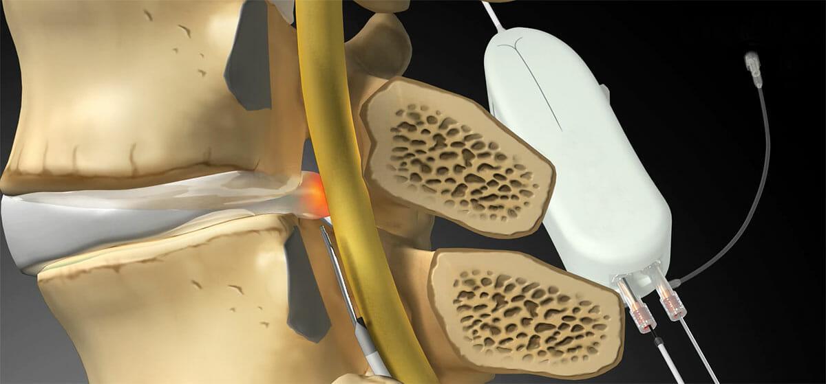 นวัตกรรมใหม่ รักษาโรคปวดหลังปวดคอเรื้อรัง ไม่ต้องผ่าตัดกระดูกสันหลัง