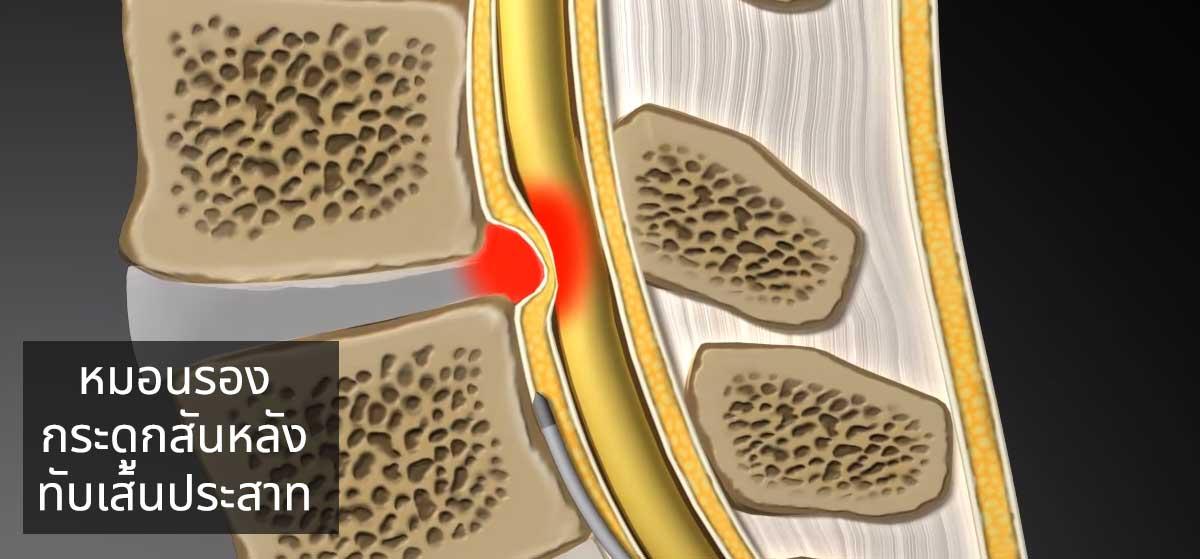 เลี่ยงผ่าตัดกระดูกสันหลัง แก้ปวดหลัง ด้วยเลเซอร์